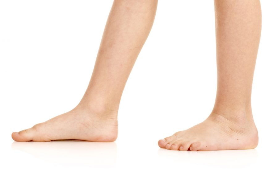 The Flat Structural Foot